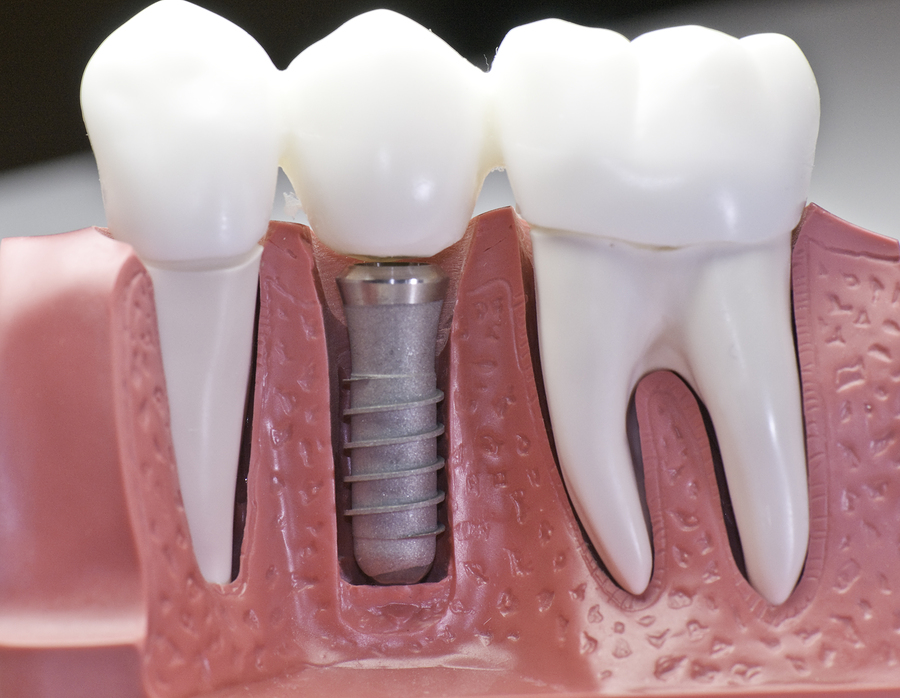 Dental Gaps, Dental Implants, Dental Replacements